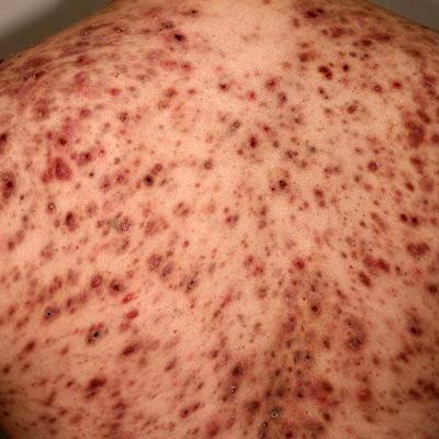 severe body acne