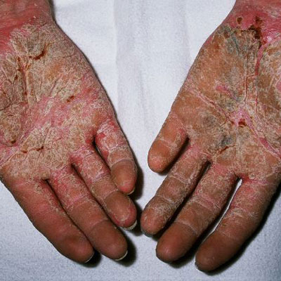 red patches on hands #11