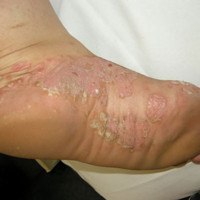 Palmar-Plantar Psoriasis | Health | Embarrassing ...