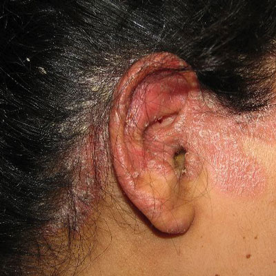 Scalp psoriasis and hair loss, these two problems together can become a highly stressed condition for all of us 2