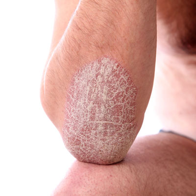 Psoriasis Affects About 4 Of People And Is The Most