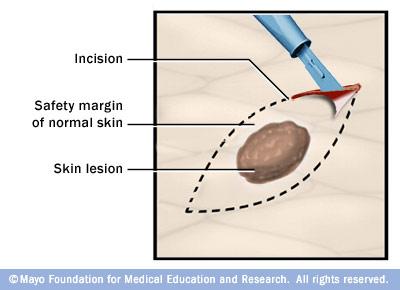 shave biopsy junctional nevus